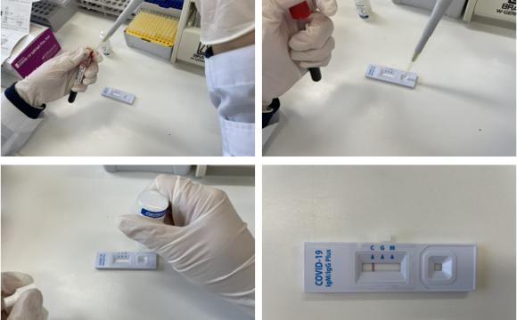 코로나19 항체검사기관 지정 및  COVID-19 항체검사 실시